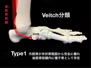 有痛性外脛骨ーVeitch分類Type1|大阪市住吉区長居藤田鍼灸整骨院