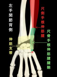 尺側手根伸筋腱脱臼ー尺側手根伸筋腱の走行と伸筋支帯|住吉区長居藤田鍼灸整骨院