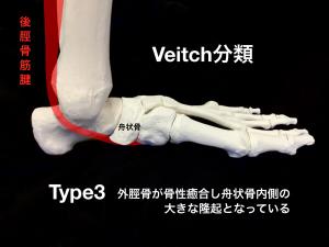 有痛性外脛骨ーVeitch分類Type3