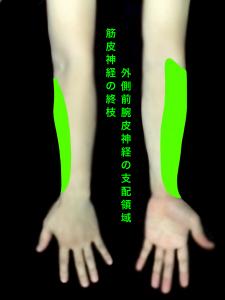 筋皮神経麻痺ー外側前腕皮神経の支配領域|住吉区長居藤田鍼灸整骨院