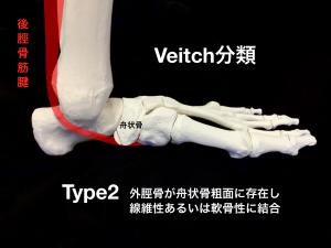 有痛性外脛骨ーVeitch分類Type2