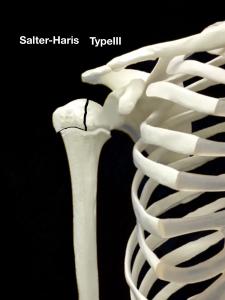 上腕骨近位骨端線離開-Salter-Harris Type3|大阪市住吉区長居藤田鍼灸整骨院
