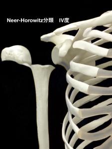 上腕骨近位骨端線離開ーNeer-Horwitz分類4度|大阪市住吉区長居藤田鍼灸整骨院