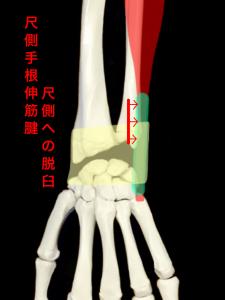 尺側手根伸筋腱脱臼|住吉区長居藤田鍼灸整骨院