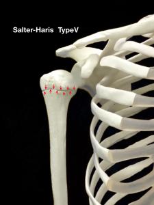 上腕骨近位骨端線離開ーSalter-Harris Type5|大阪市住吉区長居藤田鍼灸整骨院