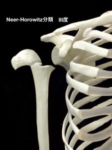 上腕骨近位骨端線離開ーNeer-Horwitz分類3度|大阪市住吉区長居藤田鍼灸整骨院