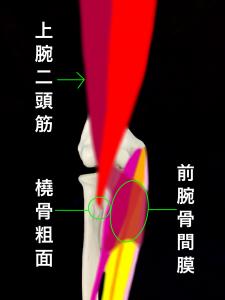 上腕二頭筋腱部分断裂ー上腕二頭筋停止部ー橈骨粗面と前腕骨間膜|大阪市住吉区長居藤田鍼灸整骨院