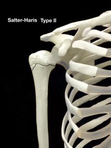 上腕骨近位骨端線離開ーSalter-Harris Type2|大阪市住吉区長居藤田鍼灸整骨院