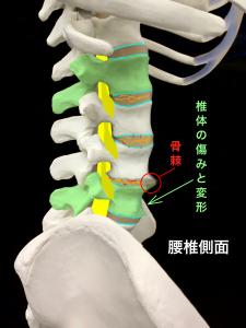 変形性腰椎症―椎体の変形と椎体の骨棘|大阪市住吉区長居藤田鍼灸整骨院