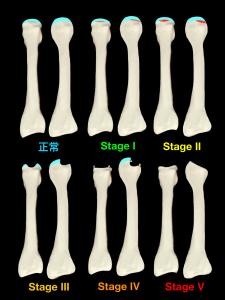 フライバーグ病(第2ケーラー病)ーSmillie分類|住吉区長居藤田鍼灸整骨院