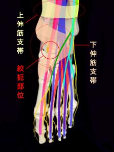 前足根管症候群の絞扼部位|大阪市住吉区長居藤田鍼灸整骨院