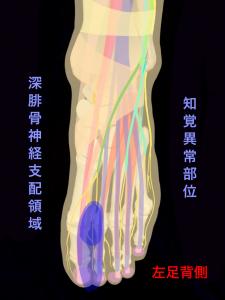 前足根管症候群ー深腓骨神経支配領域と知覚障害部位|大阪市住吉区長居藤田鍼灸整骨院
