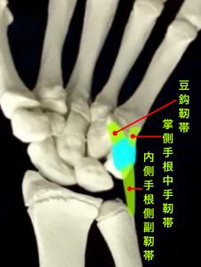 豆状骨骨折ー豆状骨に着く靭帯|住吉区長居藤田鍼灸整骨院