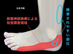 腓腹神経麻痺の知覚障害領域と好発部位|住吉区長居藤田鍼灸整骨院