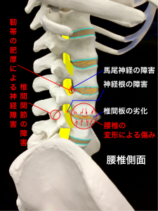 椎間関節の障害や靭帯の肥厚による神経障害、腰椎の変形による障害|大阪市住吉区長居藤田鍼灸整骨院