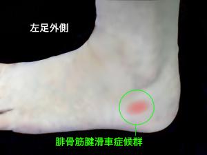 腓骨筋腱滑車症候群の障害部位|大阪市住吉区長居藤田鍼灸整骨院