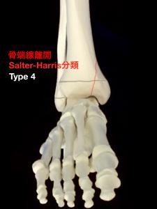 骨端線離開Salter-Harris分類Type4|大阪市住吉区長居藤田鍼灸整骨院