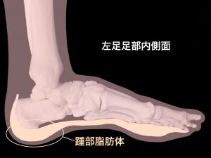 踵部脂肪体―有痛性踵パッド(踵部脂肪褥炎ファットパット症候群)|住吉区長居藤田鍼灸整骨院