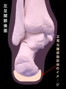 踵部脂肪体―有痛性踵パッド(踵部脂肪褥炎ファットパット症候群)|大阪市住吉区長居藤田鍼灸整骨院