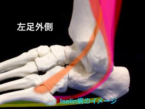 Iselin病(イズリン病・イセリン病):第5中足骨粗面部骨端症のイメージ|住吉区長居藤田鍼灸整骨院