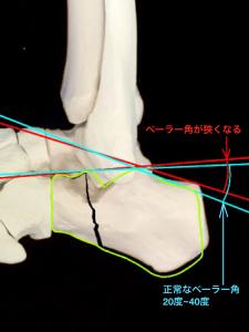 変形性距骨下関節症―踵骨骨折によりベーラー角が狭くなる|大阪市住吉区長居藤田鍼灸整骨院