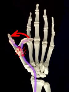 バネ指、バネ現象のイメージ|大阪市住吉区長居藤田鍼灸整骨院