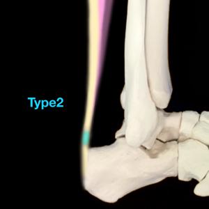 アキレス腱骨化症Type2|住吉区長居藤田鍼灸整骨院