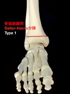 骨端線離開Salter-Harris分類Type1|大阪市住吉区長居藤田鍼灸整骨院