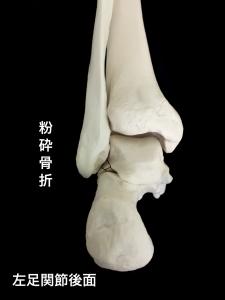 距骨外側突起骨折Hawkins分類Ⅱcomminuted fracture(粉砕骨折)|大阪市住吉区長居藤田鍼灸整骨院