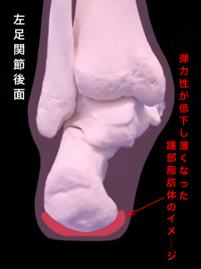有痛性踵パットー踵部脂肪褥炎イメージ