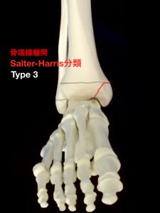 骨端線離開Salter-Harris分類Type3|大阪市住吉区長居藤田鍼灸整骨院