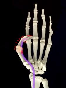 強剛母指、バネ指、腱鞘炎|大阪市住吉区長居藤田鍼灸整骨院