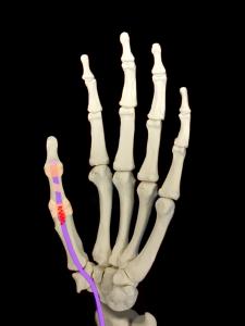 バネ指―指の曲げ伸ばしでがしづらい|住吉区長居藤田鍼灸整骨院