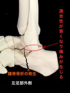 変形性距骨下関節症―踵骨骨折により関節面の異常|大阪市住吉区長居藤田鍼灸整骨院