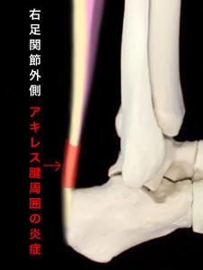 アキレス腱周囲炎のイメージ|住吉区長居藤田鍼灸整骨院