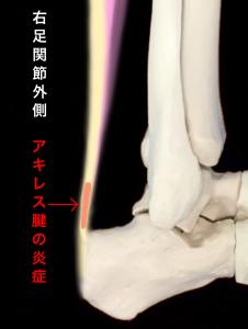 アキレス腱炎のイメージ|大阪市住吉区長居藤田鍼灸整骨院