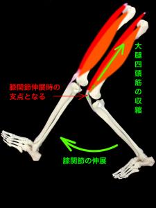 膝蓋骨剥離骨折 大腿四頭筋の収縮により膝蓋骨は膝関節伸展運動の支点となる|大阪市住吉区長居藤田鍼灸整骨院