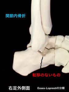 踵骨関節内骨折-転移のないもの|大阪市住吉区長居藤田鍼灸整骨院