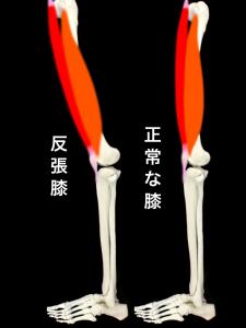 反張膝:膝をまっすぐに伸ばした状態から本来曲げる方向とは逆の方向へと「くの字」に反ってしまうような状態|大阪市住吉区長居藤田鍼灸整骨院
