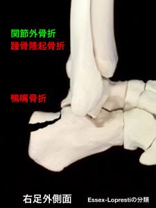 踵骨関節外骨折-踵骨隆起骨折(鴨嘴骨折)大阪市住吉区長居藤田鍼灸整骨院