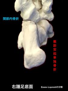 踵骨関節内骨折-載距突起陥没骨折|大阪市住吉区長居藤田鍼灸整骨院