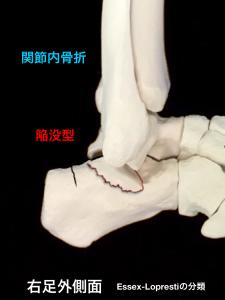 踵骨関節内骨折-陥没型|大阪市住吉区長居藤田鍼灸整骨院