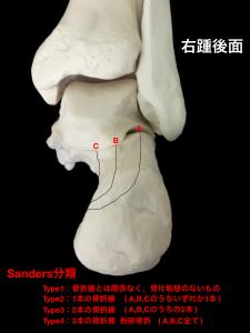 踵骨骨折Sanders分類|大阪市住吉区長居藤田鍼灸整骨院