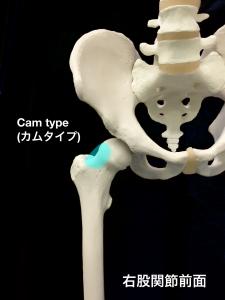 股関節インピンジメント症候群(FAI)Cam type (カムタイプ)|大阪市住吉区長居藤田鍼灸整骨院