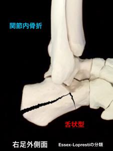 踵骨関節内骨折-舌状型|大阪市住吉区長居藤田鍼灸整骨院