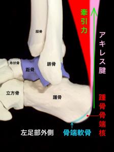 踵骨骨端症(シーバー病・セーバー病)アキレス腱により骨端核が牽引される|大阪市住吉区長居藤田鍼灸整骨院