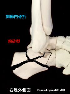 踵骨関節内骨折-粉砕型|大阪市住吉区長居藤田鍼灸整骨院