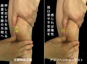 脱臼不安感テスト(アプリヘンションテスト)膝蓋骨を外側に押し出すことで膝蓋骨の脱臼感が出ると陽性となる|大阪市住吉区長居藤田鍼灸整骨院