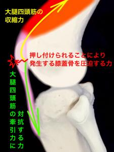 膝蓋骨疲労骨折 大腿四頭筋と膝蓋靭帯により膝蓋骨に力が加わり疲労骨折を引き起こす|大阪市住吉区長居藤田鍼灸整骨院