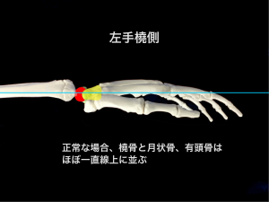橈骨と月状骨、有橈骨の正常なアライメント 大阪市住吉区長居藤田鍼灸整骨院